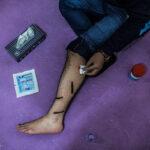 Medicinal leeches-26-