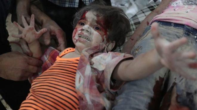 2016، مرگبارترین سال برای کودکان سوریه بود