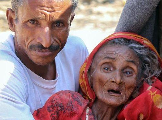 الأمم المتحدة .. ثلث المحافظات اليمنية على شفير المجاعة