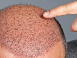 زراعة الشعر في إيران