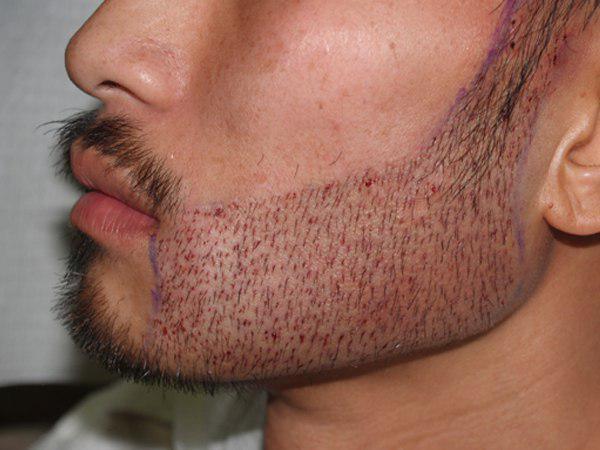 خدماتنا في مجال زراعة الشعر في إيران