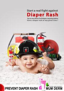How to Treat Nappy Rash