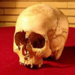 5,000-Year-Old Skull Reveals Iran's Medical Advances