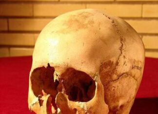 5,000-Year-Old Skull Reveals Iran's Medical Advances