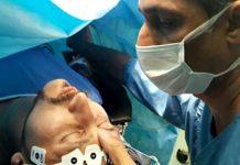 اجراء عملية جراحية بالتنويم المغناطيسي في ايران
