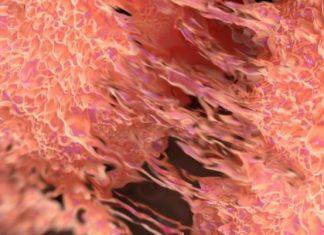 ایران .. الكشف عن الخلايا السرطانية بتقنية النانو