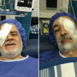 Ironic Surgeries on Rightist's Left Eye, Leftist's Right Eye!