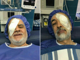 Ironic Surgeries on Rightist's Left Eye, Leftist's Right Eye!