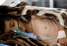 11,250 Yemenis Patients Die Due to Saudi Siege: Official