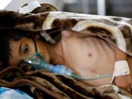 11,250 Yemenis Patients Die Due to Saudi Siege: Official