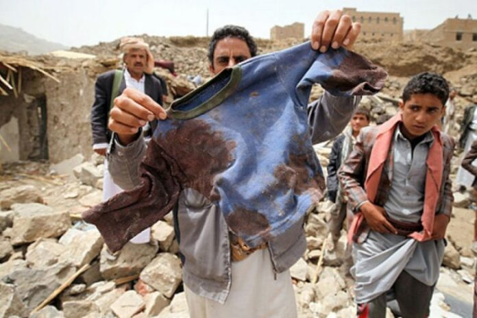 UN Puts Saudi-Led Coalition in Blacklist for Killing Yemeni Kids