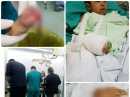 Iranian Doctors Sew Back Quick-Hit Kid's Severed Hand
