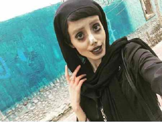 Sahar Tabar 2017 >> 50 Surgeries to Resemble Angelina Jolie Turn Iranian Girl into Corpse Bride!