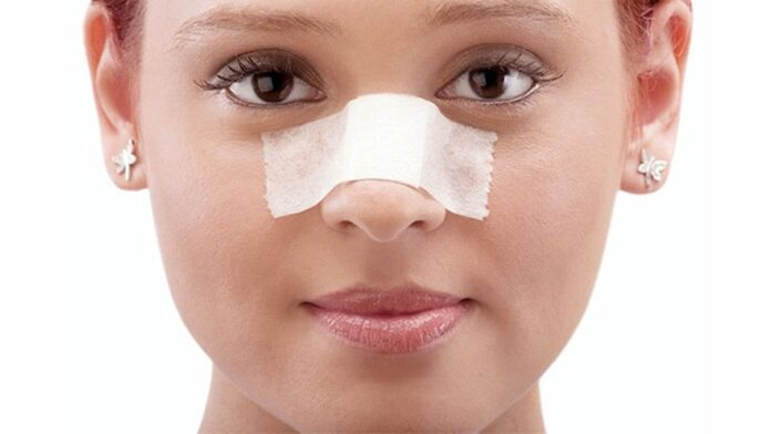 Rhinoplasty, a common cosmetic surgery