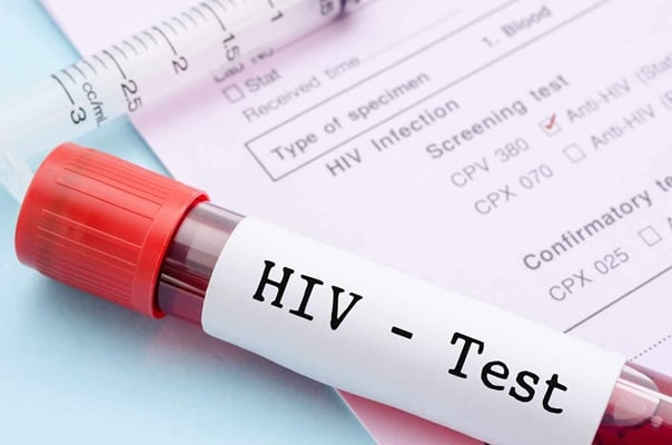 Over 8 000 Rapid Hiv Testing Centres Active In Iran