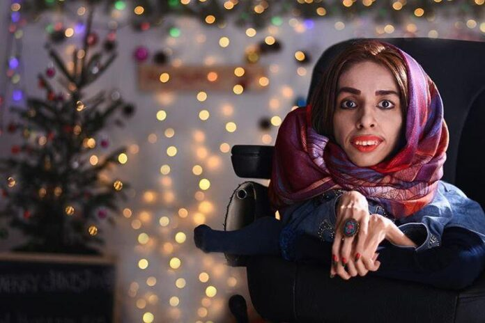 Iranian Girl Proves Disability Is Not Obstacle to Success