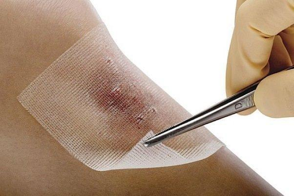 Newly-Developed Dressing Accelerates Wound Treatment
