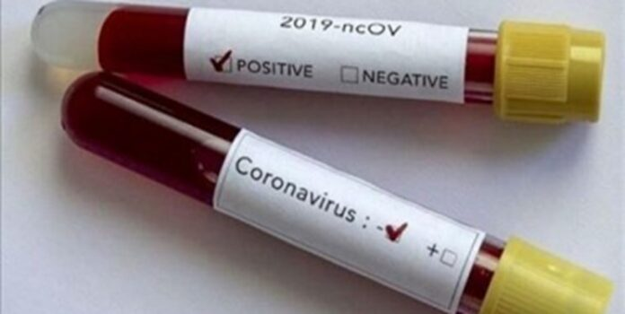 Coronavirus Test Kits Made in Iran to Come on Market Next Month