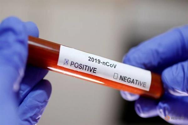 Three Iranian Teams Working on COVID-19 Vaccine: VP