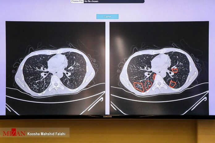 Iran Unveils COVID-19 Pneumonia Diagnosis System